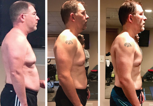 Lyell's MetPro Transformation photo